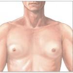 Ginecomastia. MedlinePlus. NLM