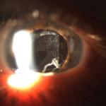 Diabetico operado de catarata con opacidada de acpsula posterior