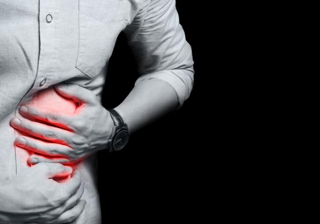 Paciente con colitis ulcerosa