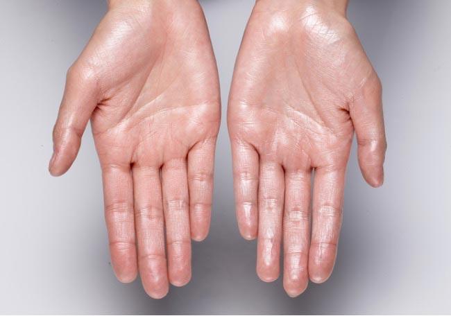 Hiperhidrosis palmar primaria
