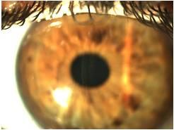 cambios-refractivos-post-keratomileusis-laser-in-situ-i