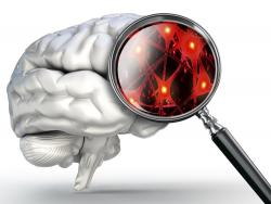 Cerebro lupa