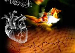 Corazon mas EKG