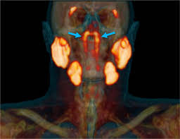 Glandulas salivales en garganta