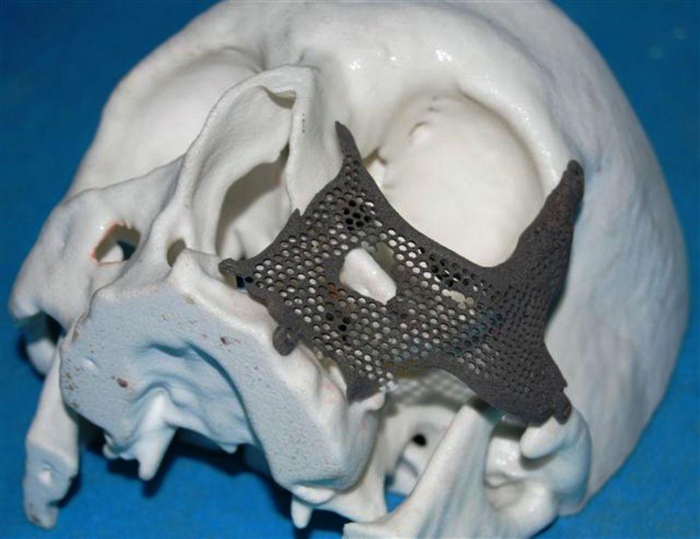 Reconstrucción facial con titanio sinterizado en Cuba