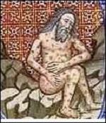 mal de San Lázaro