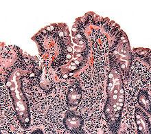 celiaca