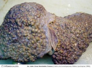 hígado cirrótico