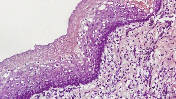 esofago-histologia