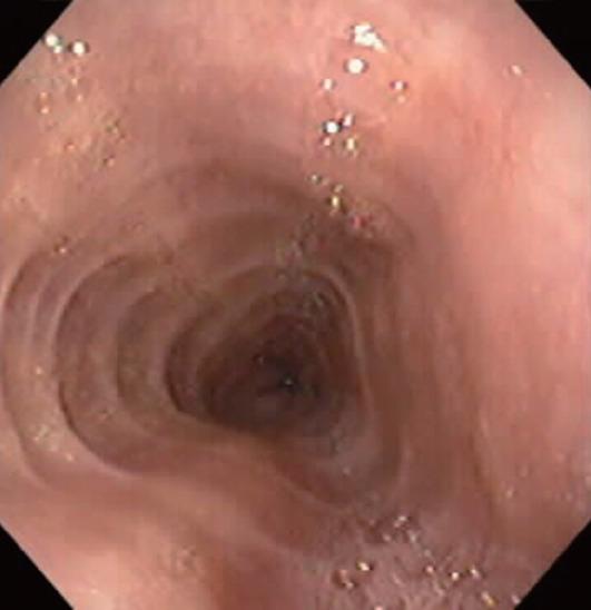 esofeosinofilica