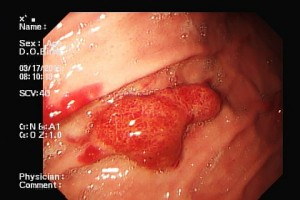 Sarcoma de Kapossi