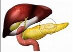 Quistes pancreáticos