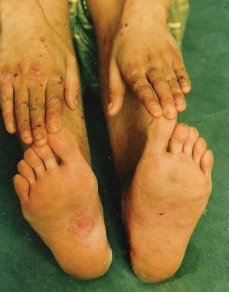 enfermedades en la piel. como la enfermedad de piel