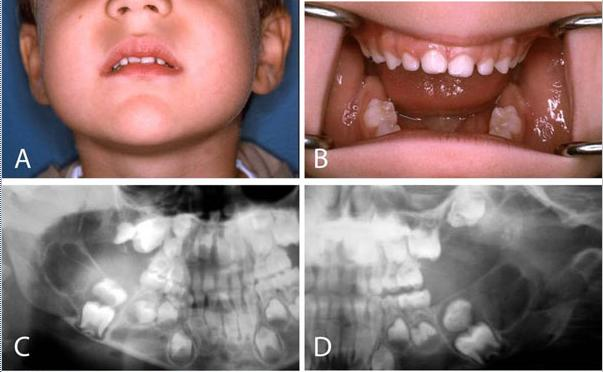 anomalias-dentales-en-querubismo