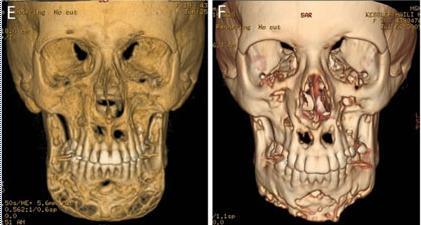 lesiones-oseas-antes-y-despues-del-tto