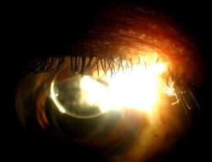 secondary-glaucoma