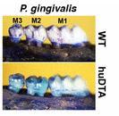2016 08 19 periodontitis