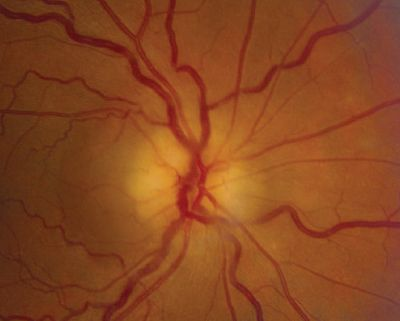 opth-45372-non-arteritic-anterior-ischemic-optic-neuropathy-secondary-t_070413