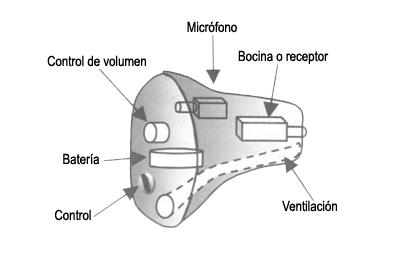 protesis_componentes_intra