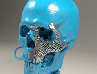 implante-malar