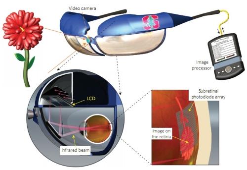 El diagrama muestra la ausencia de cables redirigidos hacia el ojo. Debido a esto, el proceso quirúrgico sería mucho más sencillo y menos invasivo.