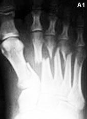 fracturas metatarsianas