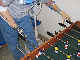 protesis de manos