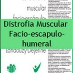 distr_musc_facioescapulh_ft-wince