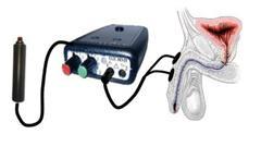 Estimulación eléctrica del nervio pudendo02_07_01-wince1