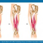 muscle-injury-classification