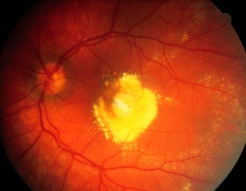 Retina Patológica