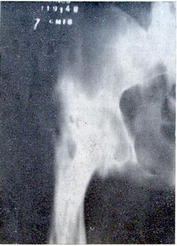 artritis septica cadera