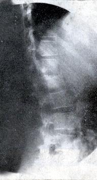 espondilitis septica