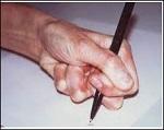 calambre del escritor (1)