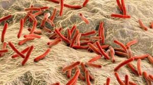 leprabacteria.jpg_1718483347