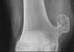 Osteocondroma 1
