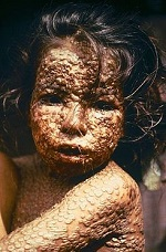 Niña infectada de viruela, cubierta por las características erupciones en la piel