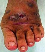 Micetoma, Maduromicosis o pie de Madura