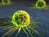 cancer-2015-pulmon