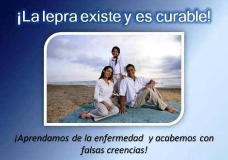 Día Mundial de la lepra 2013