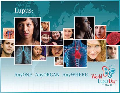Día Mundial de Lupus 2013