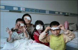 Niños operados de catarata en China. Imagen: OMS