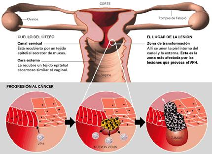 Cáncer cérvico uterino. Imagen: Cuba Ahora.cu