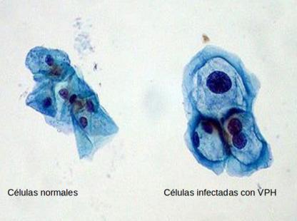Células con papiloma. Wikipedia