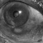 lepra-ocular