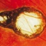 toxoplasmosis
