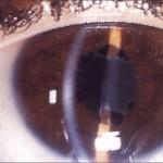 oftalmia-simpatica